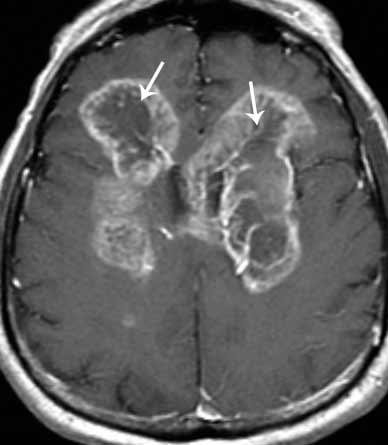 Что мы лечим опухоль головного мозга