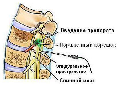 Сильная боль в правом боку отдает в спину