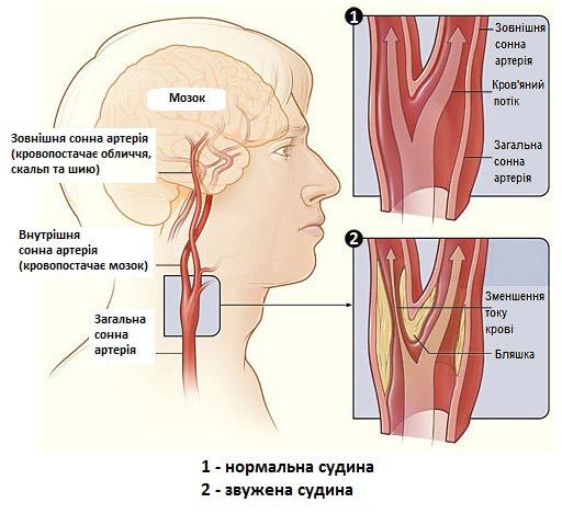 Лечение холестерина крестор