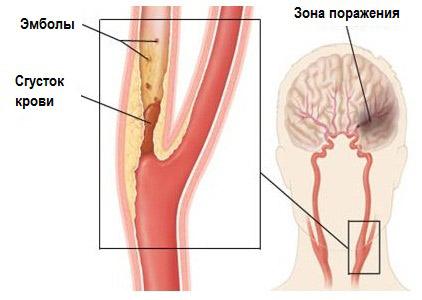 Народные средства лечения атеросклероза сосудов головного мозга