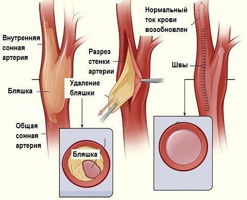 Атеросклероз сонных артерий лечение, инсульт, Международный центр ...