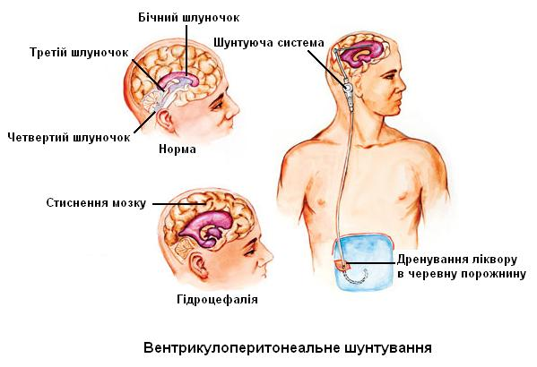 Hydrocephalus vp shunt adults