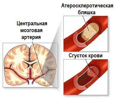 Ишемический инсульт кровоток нашел другой сосуд