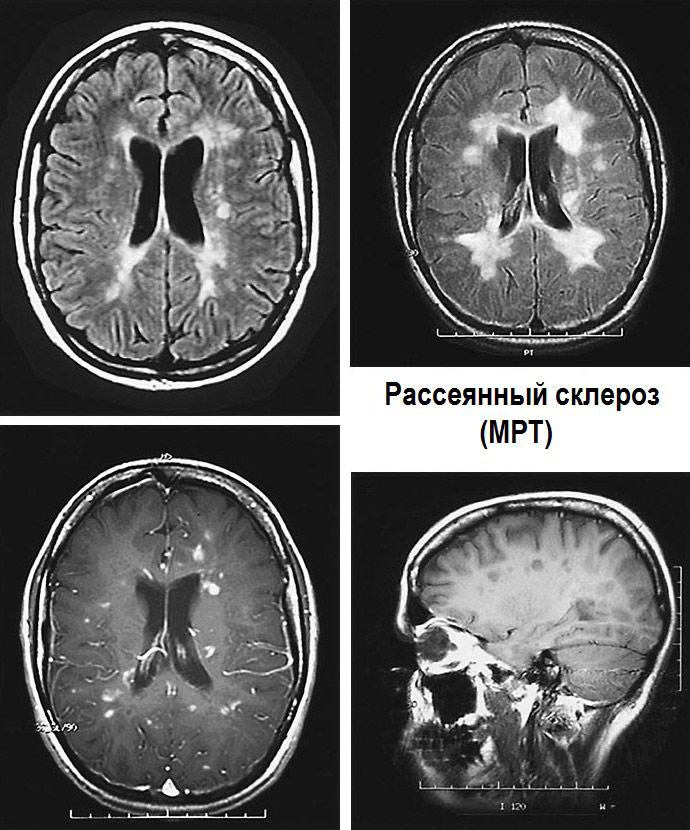 размеры сколько длится обострение при рассеянном склерозе гипоксия, нервно