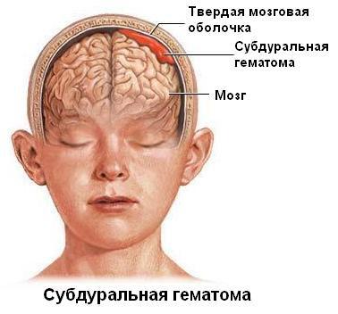 Если ударить голову после операции краниотомии
