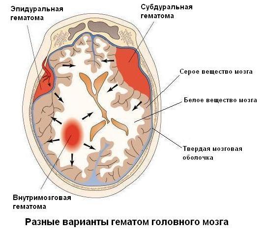 трепанация черепа.
