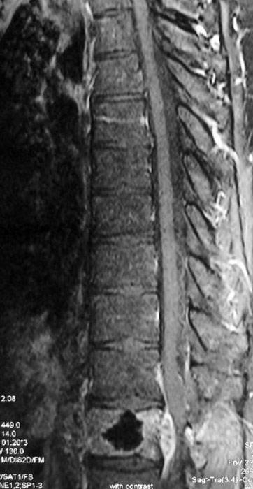 Натерла ногу задником сапог образовалась шишка