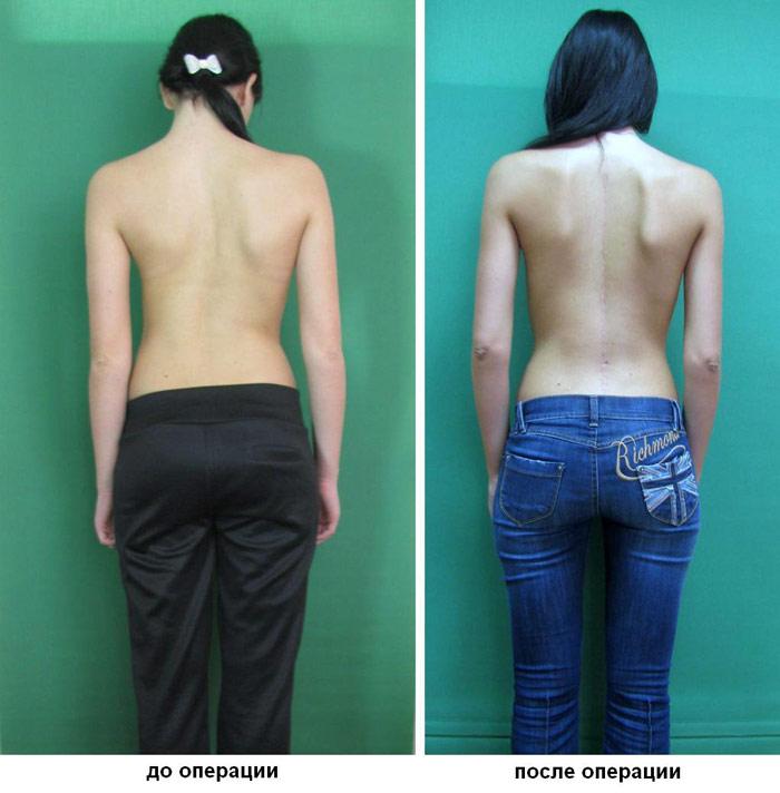 Упражнения при сколиозе и остеохондрозе шейного отдела