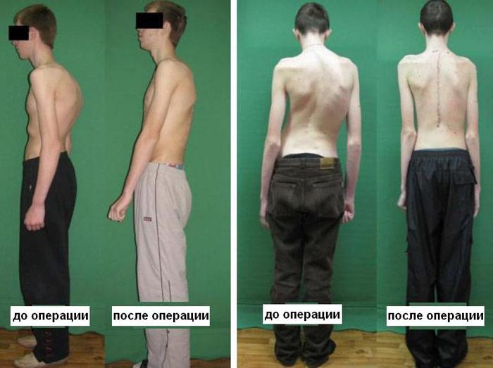 Упражнения от сколиоза спины