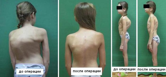 Лечение грудного кифоза видео