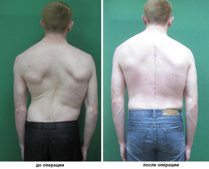 лечение позвоночника радикулит остеохондроз