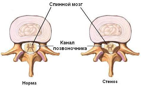 Нити мицелия на ногах лечение