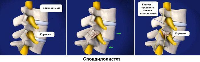 define spondylolithesis