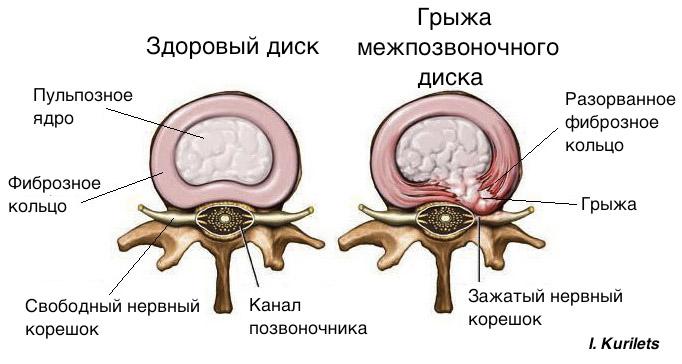 Остеохондроз шейного отдела можно заниматься бегом