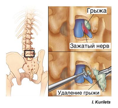 Поясничная грыжа рекомендации после операции