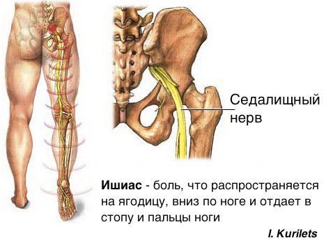 Боль внизу спины справа отдает в бедро